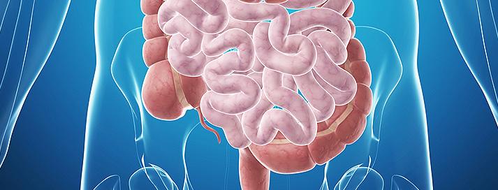 Imagen ¿Qué es la Hidroterapia de colon?