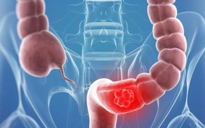Cáncer de colon: pruebas de detección
