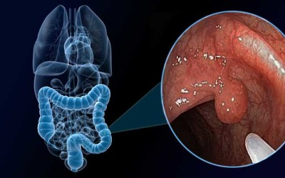 Pólipos Intestinales